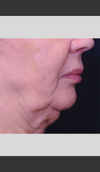 Before Photo for Profound Lift Treatment of Jawline -  - Prejuvenation