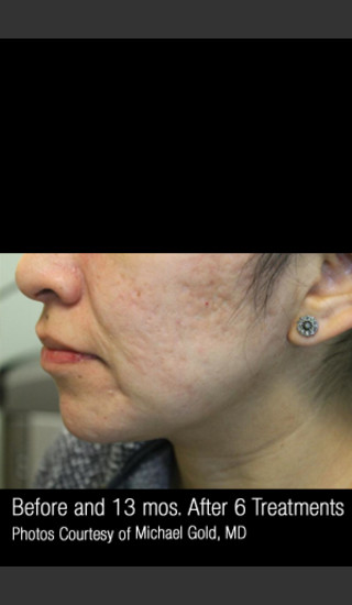 After Photo for #301 - Treatment of Cystic Acne -  - Prejuvenation