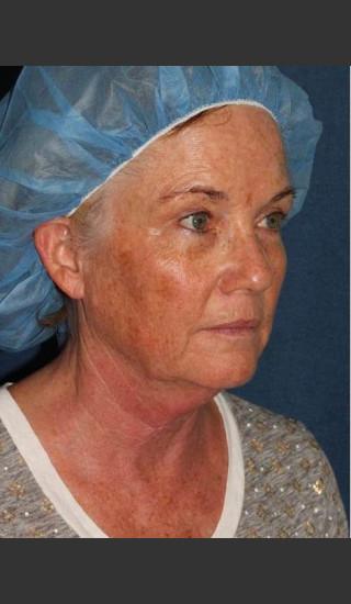 Before Photo for Chin Contouring & Sun Damage Treatment - Kimberly J. Butterwick M.D. - Prejuvenation