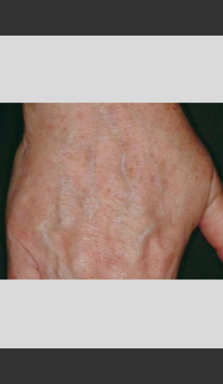 After Photo for Vbeam Laser Treatment of Pigmentation -  - Prejuvenation