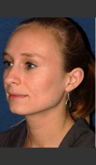 After Photo for Facial Acne Treatment - Dr. Sabrina G. Fabi - Prejuvenation