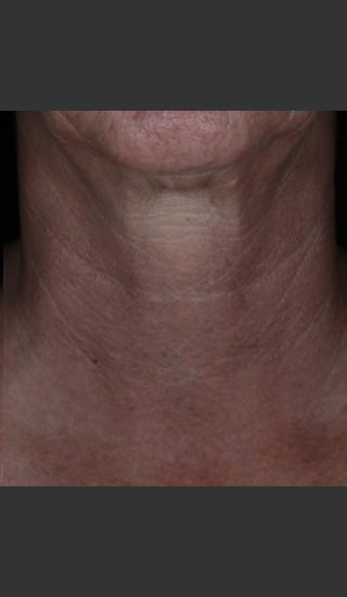 After Photo for Alastin Skincare Restorative Neck Complex with TriHex Technology® -  - Prejuvenation