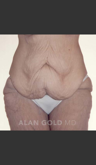 Before Photo for Circumferential Body Lift 367 - Alan Gold MD - Prejuvenation