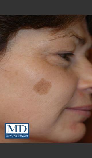 Before Photo for Brown Spots Treatment 114 - Jill S. Waibel, MD - Prejuvenation
