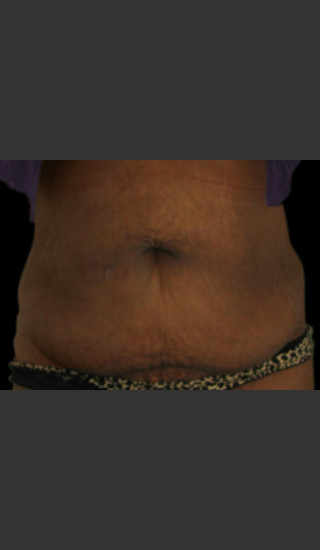 After Photo for Body Contouring Treatment #115 -  - Prejuvenation