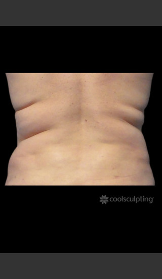 Before Photo for CoolSculpting on Woman's Love Handles -  - Prejuvenation