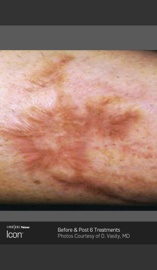 Before Photo for Scar Reduction Using Icon 1540 -  - Prejuvenation