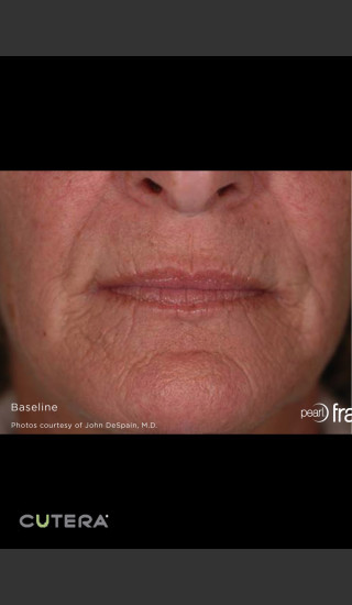 Before Photo for Pearl Fusion Resurfacing of Wrinkles -  - Prejuvenation