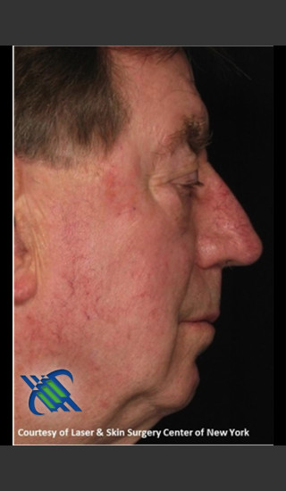 After Photo for Male Full Face Fraxel Treament - Roy G. Geronemus, M.D. - Prejuvenation