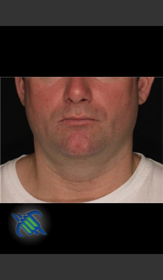Before Photo for Treatment of Male Neck with Laser Liposuction - Roy G. Geronemus, M.D. - Prejuvenation
