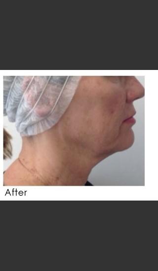 After Photo for Infini Treatment for Neck Rejuvenation - Annie Chiu, MD - Prejuvenation