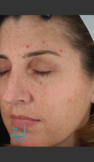 Before Photo for Full Face Treatment of Skin Pigmentation - Brian D. Zelickson, M.D. - Prejuvenation
