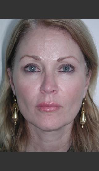 Before Photo for Sculptra for Facial Volume Restoration - James Newman - Prejuvenation