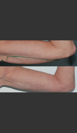 After Photo for Submental and arm localized liposuction - Mark B. Taylor, M.D. - Prejuvenation