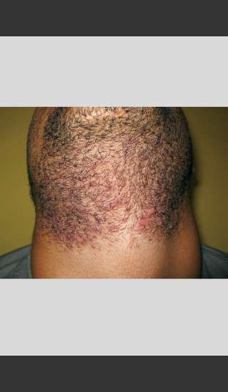 Before Photo for Gentle Laser Hair Removal of Beard Bumps -  - Prejuvenation