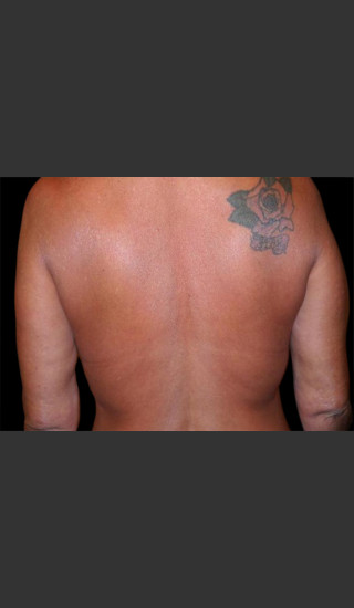 After Photo for Body Contouring Treatment #113 -  - Prejuvenation
