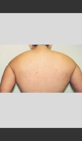 After Photo for Gentle Laser Hair Removal -  - Prejuvenation