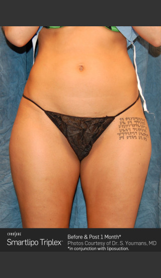Before Photo for Smartlipo Laser Lipo of the Thighs -  - Prejuvenation