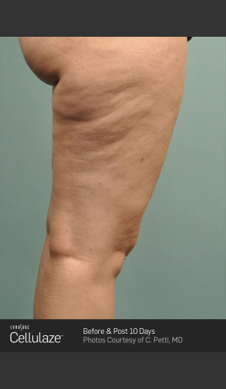 Before Photo for Cellulaze Cellulite Treatment of the Thighs -  - Prejuvenation