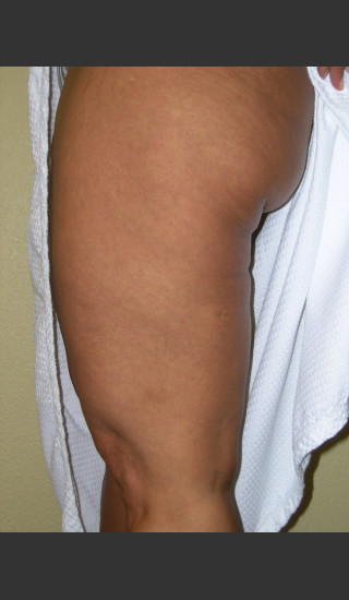 After Photo for 3DEEP Thigh Cellulite Reduction -  - Prejuvenation