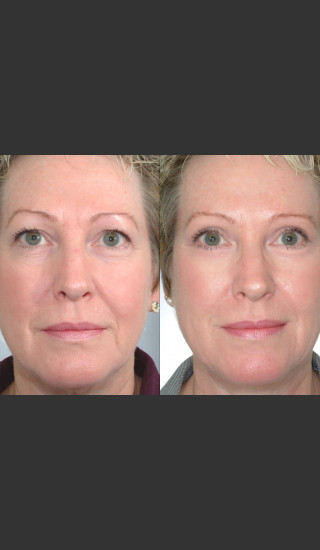 Before Photo for Two women with Laser Eyelid Blepharoplasty - Mark B. Taylor, M.D. - Prejuvenation