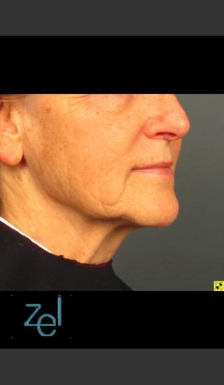 After Photo for Lower Face Ultherapy & Dermal Fillers - Brian D. Zelickson, M.D. - Prejuvenation