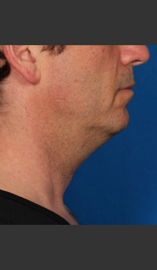 Before Photo for Kybella Treatment 47 Year Old Male -  - Prejuvenation