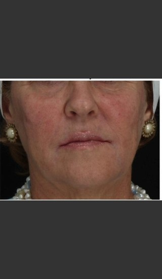 After Photo for Immediate Lifting of Corners of the Mouth after Juvederm Ultra injection (effect is immediately after injection) - Leyda Elizabeth Bowes, M.D. - Prejuvenation