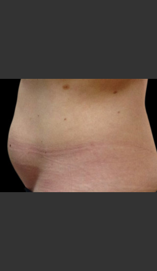 Before Photo for Body Contouring Treatment #117 -  - Prejuvenation