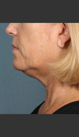 Before Photo for Kybella Treatment 54 Year Old Female -  - Prejuvenation