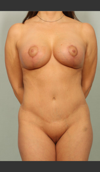 After Photo for Breast Lift - El Paso Cosmetic Surgery - Prejuvenation