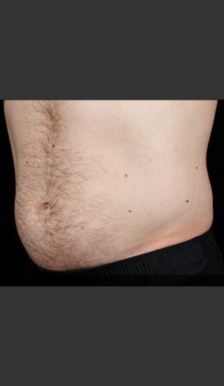 After Photo for SculpSure Abdomen - Sean Doherty - Prejuvenation