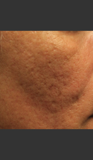 Before Photo for Infini Acne Scar Treatment #12 -  - Prejuvenation