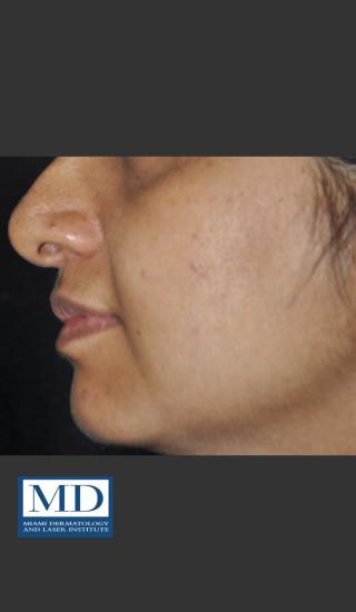 After Photo for Post Inflammatory Hyperpigmentation 120 - Jill S. Waibel, MD - Prejuvenation