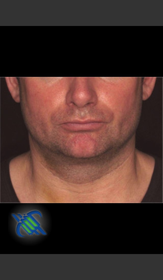 After Photo for Treatment of Male Neck with Laser Liposuction - Roy G. Geronemus, M.D. - Prejuvenation