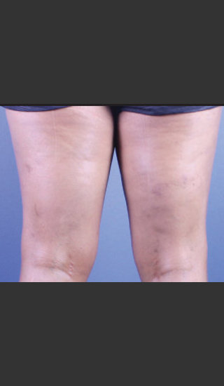 After Photo for Sclerotherapy Treatment for Varicose Veins - Daniel Friedmann  - Prejuvenation