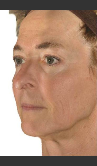 After Photo for Infini Facial Laxity and Rhytides Treatment -  - Prejuvenation