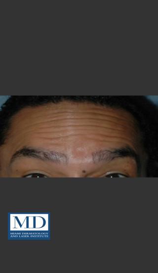 Before Photo for Neurotoxin Treatment of Forehead 131 - Jill S. Waibel, MD - Prejuvenation