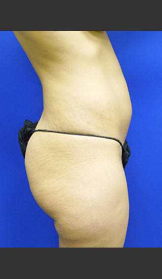 Before Photo for Brazilian Butt Lift Case #1 - Paul C. Dillon, MD - Prejuvenation