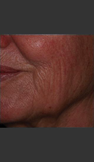Before Photo for Infini Rhytides Treatment #19 -  - Prejuvenation