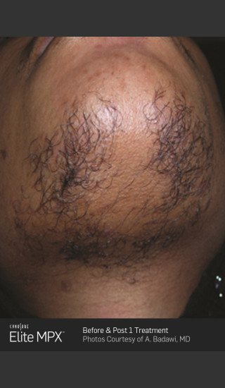 Before Photo for Hair Removal on Chin with Elite MPX -  - Prejuvenation