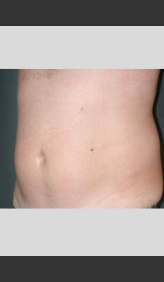 After Photo for UltraShape Body Contouring Abdomen -  - Prejuvenation