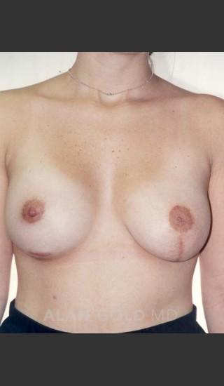 After Photo for Asymmetrical Breast 470 - Alan Gold MD - Prejuvenation