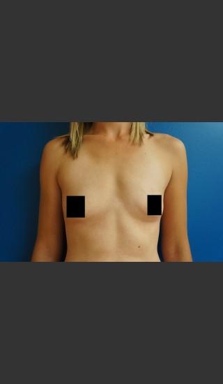 Before Photo for Breast Augmentation - Dr. Josh Olson - Prejuvenation