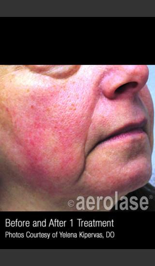 Before Photo for Treatment of Facial Redness #336 -  - Prejuvenation