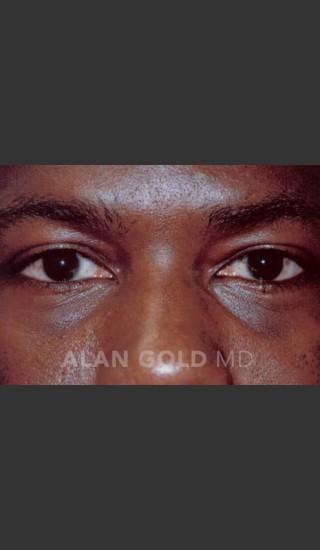 After Photo for Blepharoplasty 1027 - Alan Gold MD - Prejuvenation