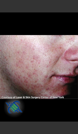 Before Photo for Treatment of Facial  Acne Scars - Roy G. Geronemus, M.D. - Prejuvenation