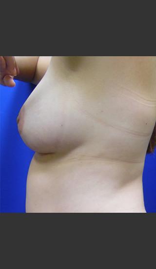 After Photo for Breast Augmentation Case #1 - Paul C. Dillon, MD - Prejuvenation