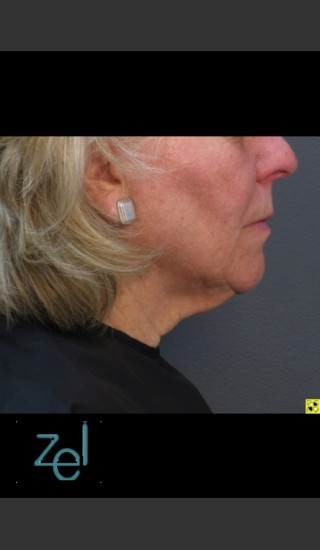 After Photo for Treatment of Lower Face with Ultherapy - Brian D. Zelickson, M.D. - Prejuvenation