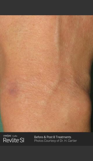 After Photo for Revlite SI laser Tattoo Removal -  - Prejuvenation